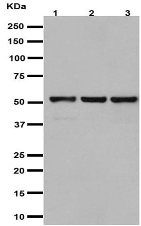 Western blot - Anti-Glucose Transporter GLUT3 antibody [EPR10508(N)] - BSA and Azide free (ab240317)