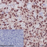 Immunohistochemistry (Formalin/PFA-fixed paraffin-embedded sections) - Anti-RUNX2 antibody [EPR14334] - BSA and Azide free (ab240329)