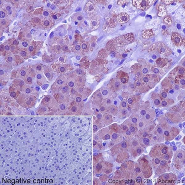 Immunohistochemistry (Formalin/PFA-fixed paraffin-embedded sections) - Anti-SULT2A1/ST2 antibody [EPR16096] - BSA and Azide free (ab240333)
