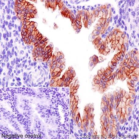 Immunohistochemistry (Formalin/PFA-fixed paraffin-embedded sections) - Anti-Prostacyclin receptor antibody [EPR16518] - BSA and Azide free (ab240340)