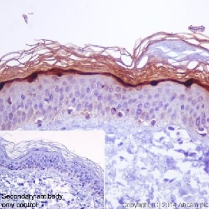 Immunohistochemistry (Formalin/PFA-fixed paraffin-embedded sections) - Anti-Loricrin antibody [EPR7149(2)] - BSA and Azide free (ab240345)