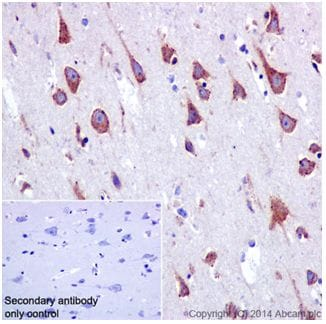 Immunohistochemistry (Formalin/PFA-fixed paraffin-embedded sections) - Anti-SSX2IP antibody [EPR16979] - BSA and Azide free (ab240348)