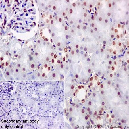 Immunohistochemistry (Formalin/PFA-fixed paraffin-embedded sections) - Anti-KAT8 / MYST1 / MOF antibody [EPR15803] - BSA and Azide free (ab240355)