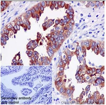 Immunohistochemistry (Formalin/PFA-fixed paraffin-embedded sections) - Anti-HE4 antibody [EPR16658] - BSA and Azide free (ab240357)