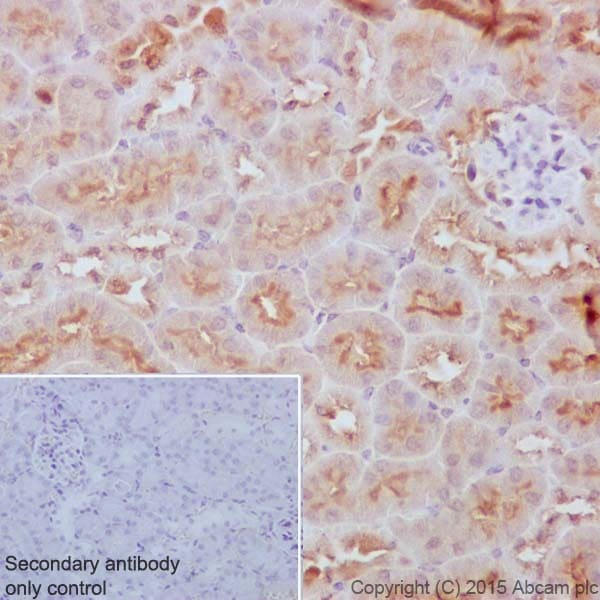 Immunohistochemistry (Formalin/PFA-fixed paraffin-embedded sections) - Anti-p53 DINP1/TP53INP1 antibody [EPR17974] - BSA and Azide free (ab240362)