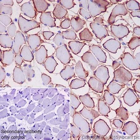 Immunohistochemistry (Formalin/PFA-fixed paraffin-embedded sections) - Anti-gamma Sarcoglycan antibody [EPR17862-40] - BSA and Azide free (ab240365)