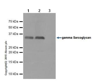Immunoprecipitation - Anti-gamma Sarcoglycan antibody [EPR17862-40] - BSA and Azide free (ab240365)