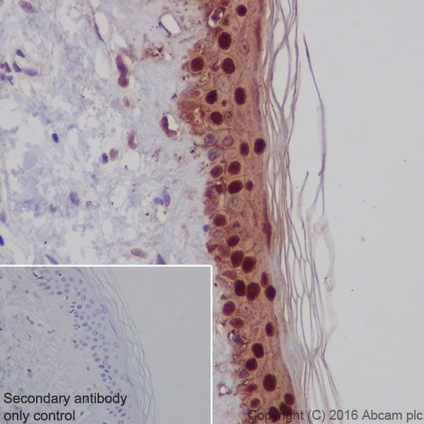 Immunohistochemistry (Formalin/PFA-fixed paraffin-embedded sections) - Anti-Galectin 7 antibody [EPR19903] - BSA and Azide free (ab240374)