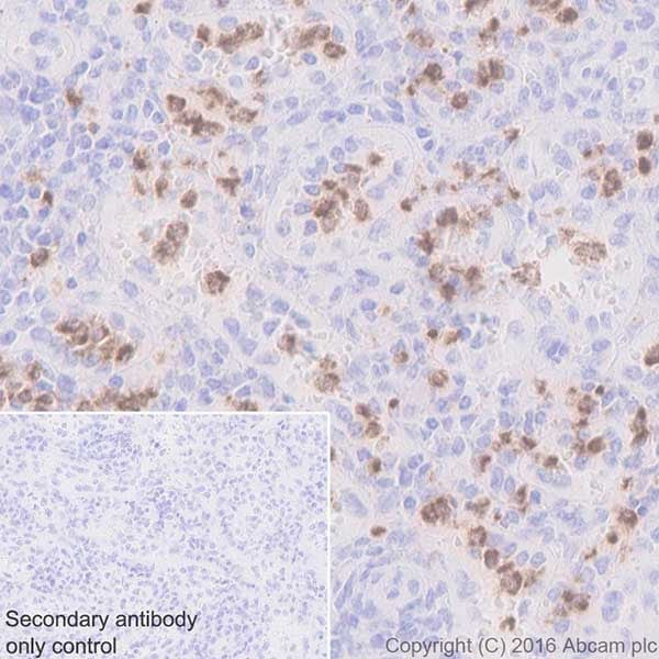 Immunohistochemistry (Formalin/PFA-fixed paraffin-embedded sections) - Anti-Cathelicidin/CLP antibody [EPR20469] - BSA and Azide free (ab240378)