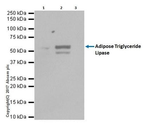 Immunoprecipitation - Anti-Adipose Triglyceride Lipase antibody [EPR19650] - BSA and Azide free (ab240381)