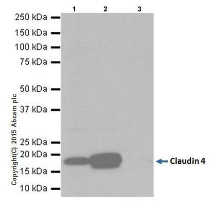 Immunoprecipitation - Anti-Claudin 4 antibody [EPRR17575] - BSA and Azide free (ab240384)