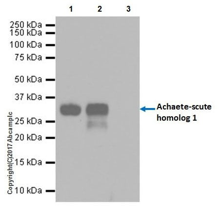 Immunoprecipitation - Anti-MASH1/Achaete-scute homolog 1 antibody [EPR19840] - BSA and Azide free (ab240385)