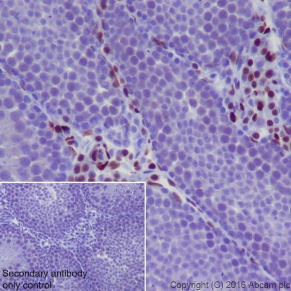Immunohistochemistry (Formalin/PFA-fixed paraffin-embedded sections) - Anti-NR2F2 antibody [EPR18442] - BSA and Azide free (ab240386)