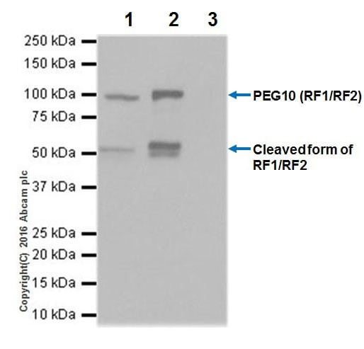 Immunoprecipitation - Anti-PEG10/EDR antibody [EPR20051] - BSA and Azide free (ab240392)