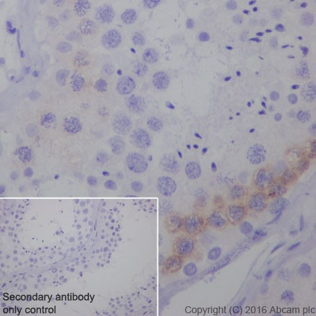 Immunohistochemistry (Formalin/PFA-fixed paraffin-embedded sections) - Anti-PEG10/EDR antibody [EPR20051] - BSA and Azide free (ab240392)