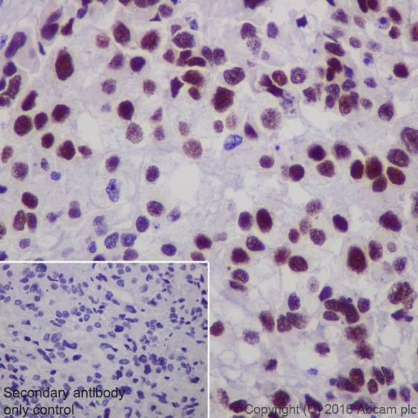 Immunohistochemistry (Formalin/PFA-fixed paraffin-embedded sections) - Anti-Steroidogenic Factor 1/SF-1 antibody [EPR19744] - BSA and Azide free (ab240394)