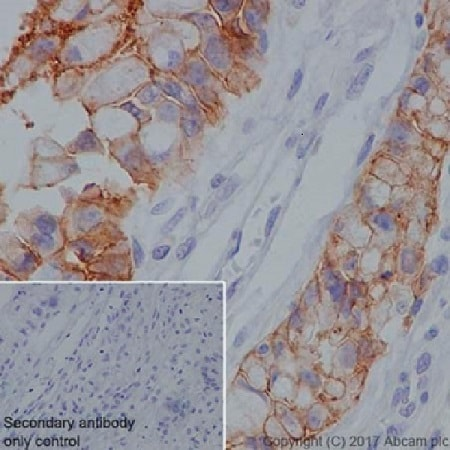Immunohistochemistry (Formalin/PFA-fixed paraffin-embedded sections) - Anti-Claudin18.2 antibody [EPR19202] - BSA and Azide free (ab240400)
