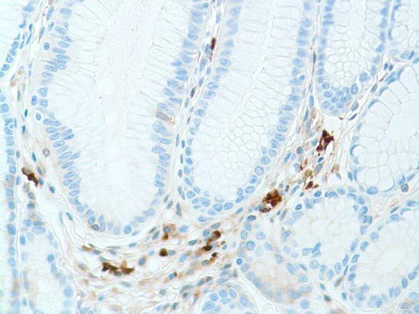 Immunohistochemistry (Formalin/PFA-fixed paraffin-embedded sections) - Anti-Kappa light chain antibody [SP148] - BSA and Azide free (ab240405)