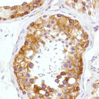 Immunohistochemistry (Formalin/PFA-fixed paraffin-embedded sections) - Anti-CD276 antibody [SP206] - BSA and Azide free (ab240407)