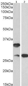 Western blot - Anti-C16orf57 antibody (ab240421)