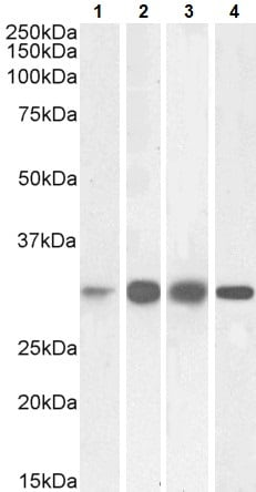 Western blot - Anti-ketohexokinase antibody (ab240436)