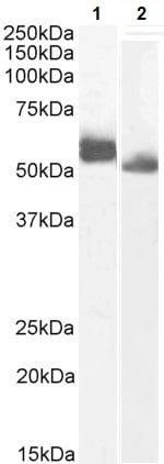 Western blot - Anti-MUM1 antibody (ab240453)