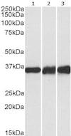 Western blot - Anti-Lactate Dehydrogenase B/LDH-B antibody (ab240482)