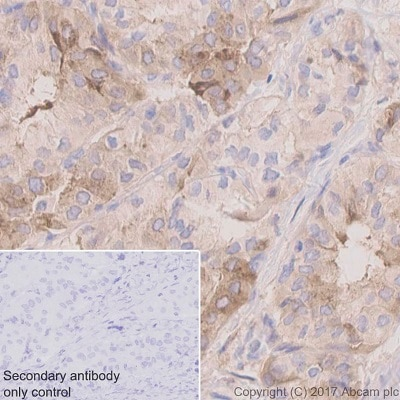 Immunohistochemistry (Formalin/PFA-fixed paraffin-embedded sections) - Anti-TIMP1 antibody [EPR1550] - BSA and Azide free (ab240504)