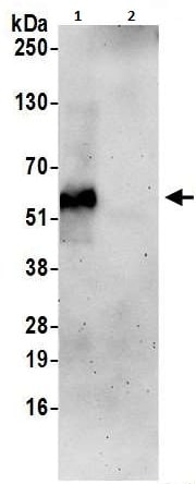 Immunoprecipitation - Anti-TTYH3 antibody (ab240580)