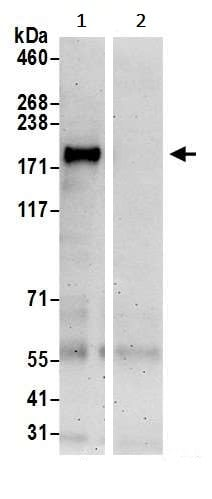Immunoprecipitation - Anti-IPS1 antibody (ab240584)