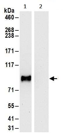 Immunoprecipitation - Anti-GRAM1DA antibody (ab240587)