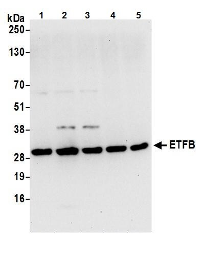 Western blot - Anti-ETFB antibody (ab240593)