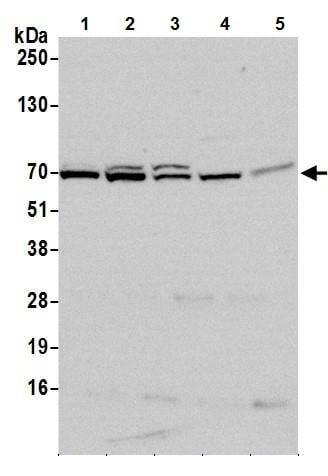 Western blot - Anti-METTL3 antibody (ab240595)