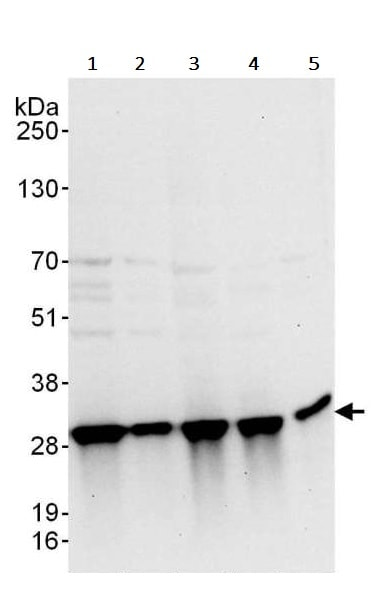Western blot - Anti-Triosephosphate isomerase antibody (ab240599)