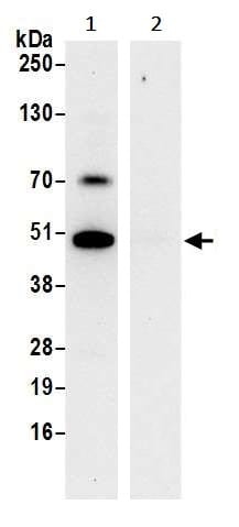 Immunoprecipitation - Anti-HADHB antibody (ab240601)