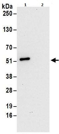 Immunoprecipitation - Anti-DAZAP1 antibody (ab240604)