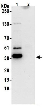 Immunoprecipitation - Anti-SerpinB6/CAP antibody (ab240611)