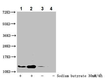 Western blot - Anti-Histone H4 (butyryl K16) antibody (ab240615)