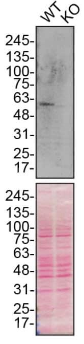 Western blot - Anti-SQSTM1 / p62 antibody [EPR23101-103] (ab240635)