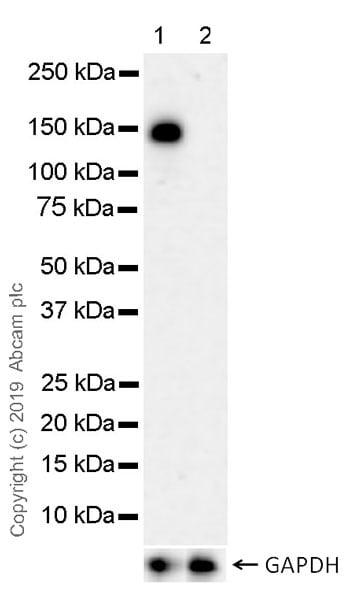 Western blot - Anti-HDAC5 antibody [EPR22996-105] (ab240644)