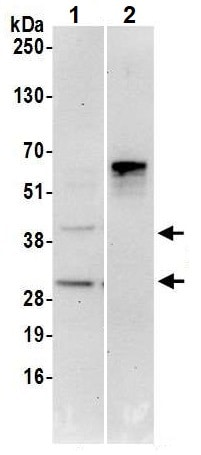 Immunoprecipitation - Anti-UBFD1 antibody (ab240696)