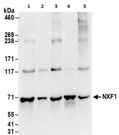 Western blot - Anti-NXF1 antibody (ab240705)