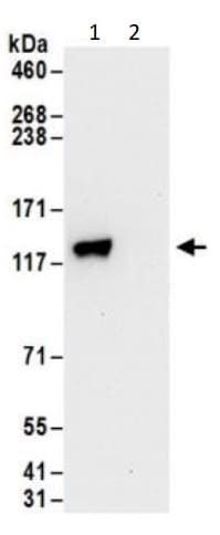 Immunoprecipitation - Anti-Uba6 antibody (ab240733)