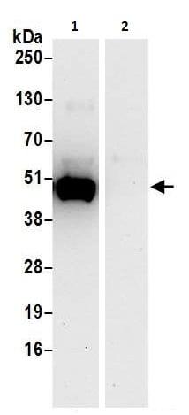 Immunoprecipitation - Anti-PAICS/PAIS antibody (ab240743)