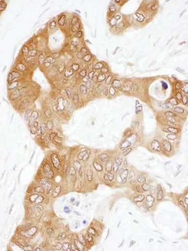 Immunohistochemistry (Formalin/PFA-fixed paraffin-embedded sections) - Anti-PAICS/PAIS antibody (ab240743)