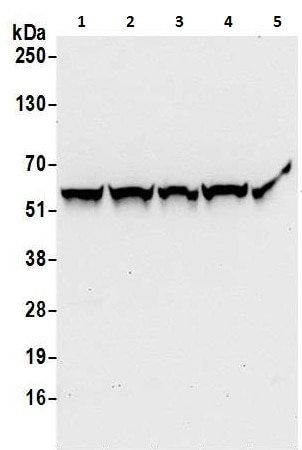 Western blot - Anti-PHGDH/Malate dehydrogenase antibody (ab240744)
