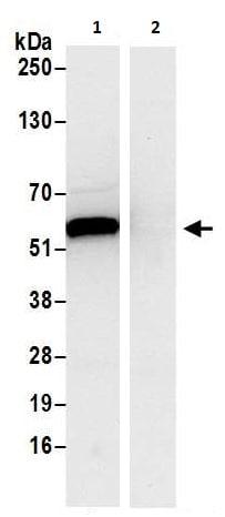 Immunoprecipitation - Anti-PHGDH/Malate dehydrogenase antibody (ab240744)