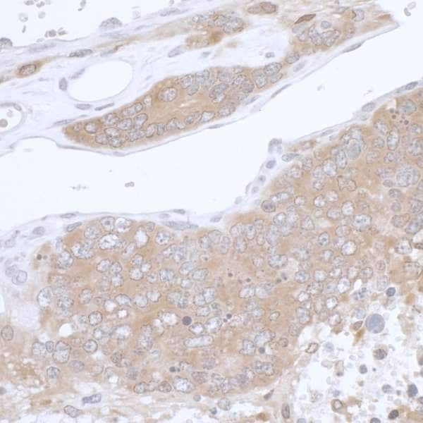 Immunohistochemistry (Formalin/PFA-fixed paraffin-embedded sections) - Anti-PHGDH/Malate dehydrogenase antibody (ab240744)