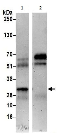 Immunoprecipitation - Anti-EFHD2/SWS1 antibody (ab240745)