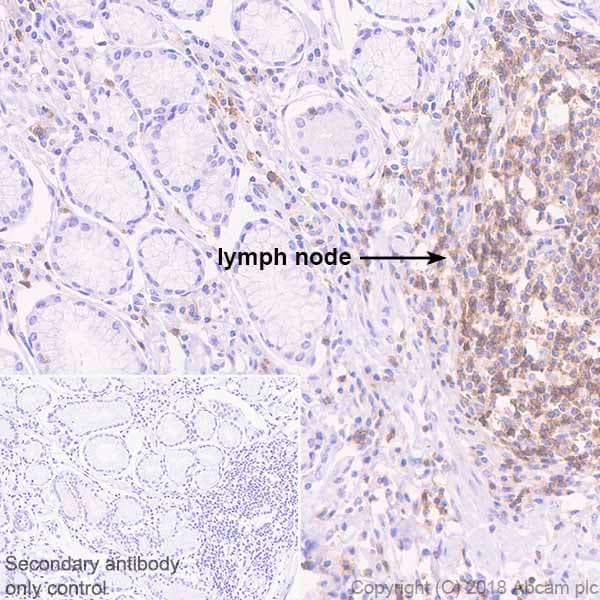 Immunohistochemistry (Formalin/PFA-fixed paraffin-embedded sections) - Anti-TREM1 antibody [EPR22060-229] - BSA and Azide free (ab240824)